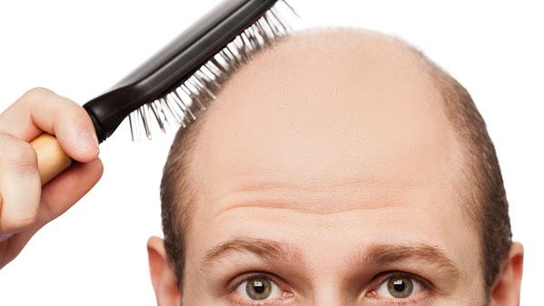 1930362428001_losing_hair