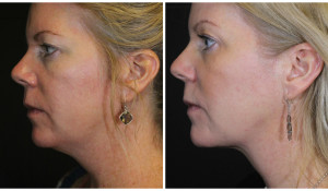 kybella-before-and-after-2-treatments